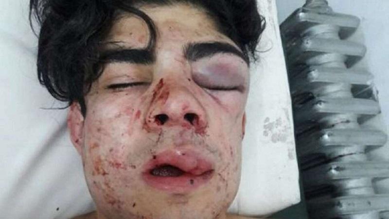 Joven sufrió brutal golpiza en Mendoza porque creyeron que era chileno