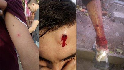 Tigre: salvaje represión de la Policía Bonaerense en el barrio Las Tunas