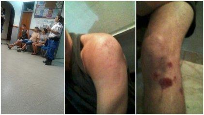 La Policía de Lanús agredió a un estudiante de la UNLa